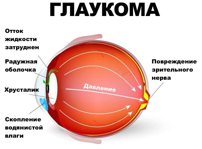 Глаукома. врожденная, вторичная и первичная глаукомы.