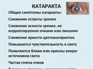Признаки первичной глаукомы: симптомы и лечение