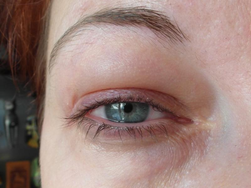 Отекают глаза по утрам: причины у мужчин и женщин, что делать, если после сна опухают веки, лечение