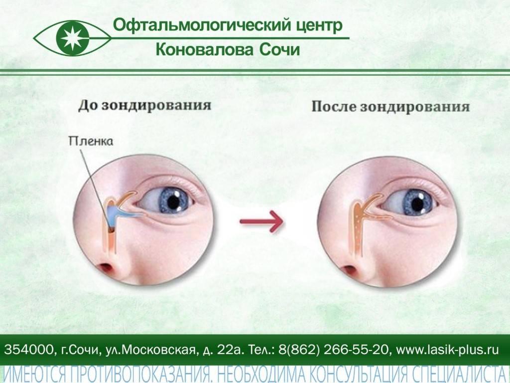 Массаж слезного канала у новорожденных (22 фото): как делать массаж при дакриоцистите новорожденных, массажируем носослезный канал при непроходимости и его закупорке