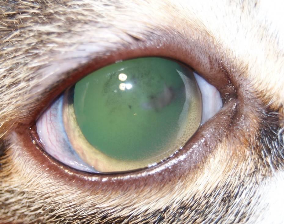 Увеит глаза: причины, симптомы, диагностика и лечение хронического, вялотекущего