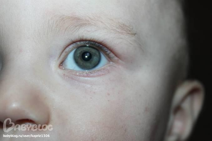 Красные веки у новорожденного после родов (сосуды, круги вокруг глаз): причины появления и  нужно ли показать грудничка врачу?