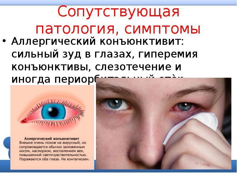 Конъюнктивит. аллергический, бактериальный и вирусный конъюнктивит. причины, симптомы, диагностика и лечение болезни. :: polismed.com