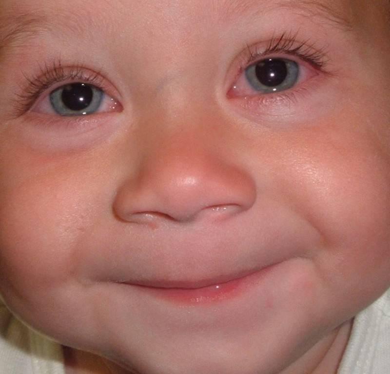 Серьезная патология или легкий недуг: что делать, если у ребенка слезится один глаз?