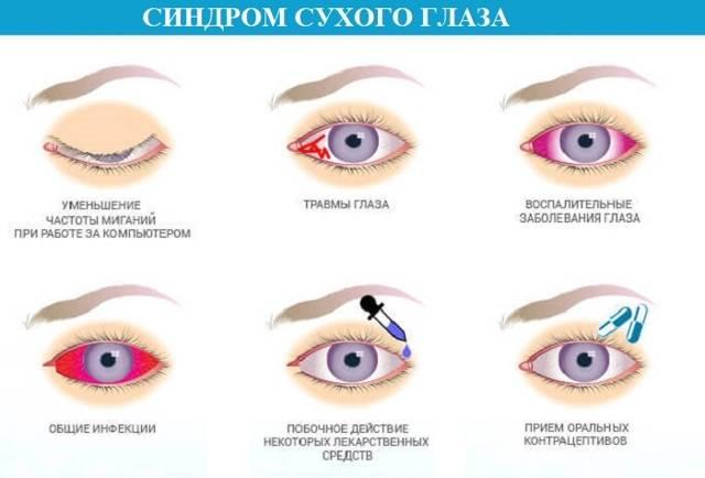Боль в глазах: основные причины, диагностика и лечение | ким