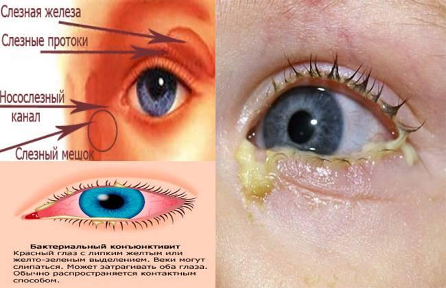 Гноится глаз у ребенка — причины и лечение