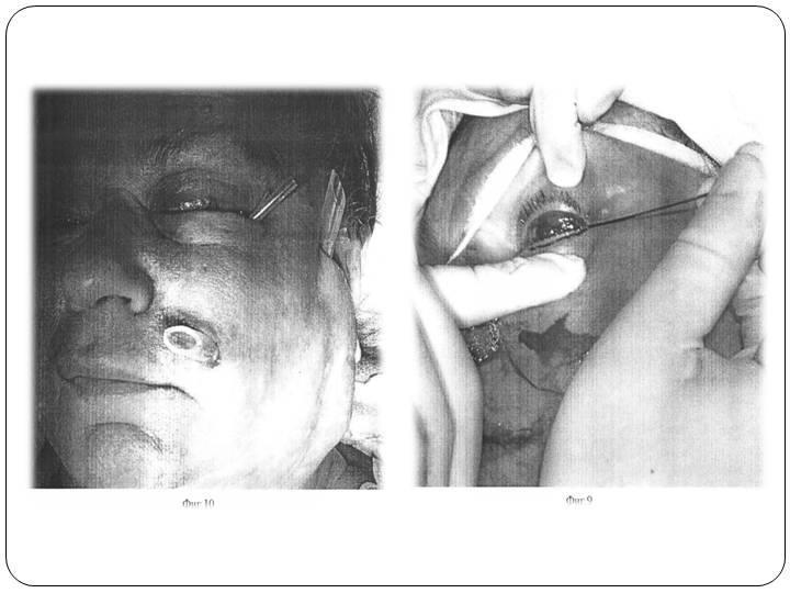 Флегмона орбиты (глазницы)