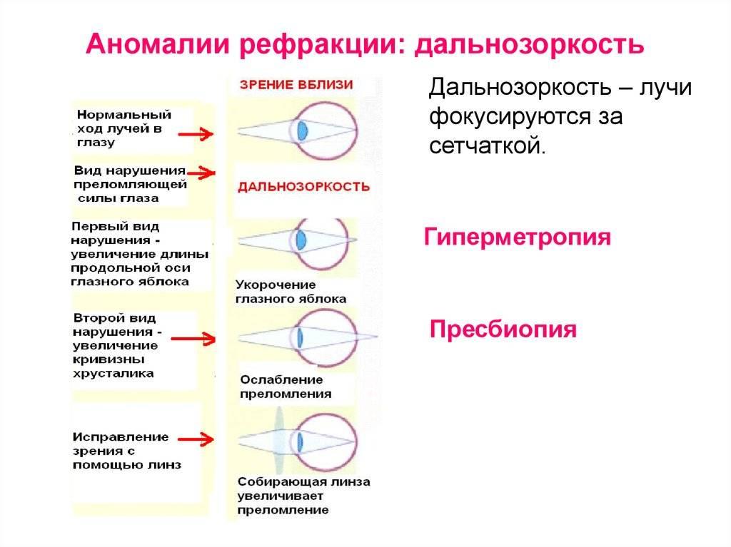 Аномалии рефракции - медицинский справочник