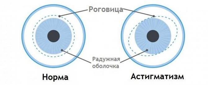 Пахиметрия: что это такое в офтальмологии, кератопахиметрия глаза, толщина роговицы норма у взрослых