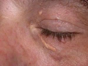 Ксантелазма: причины, лечение, удаление, фото и симптомы