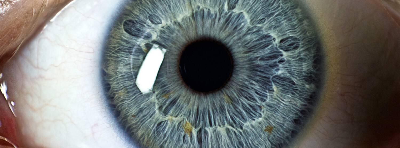 Царапина на глазу: что делать, как лечить? | компетентно о здоровье на ilive