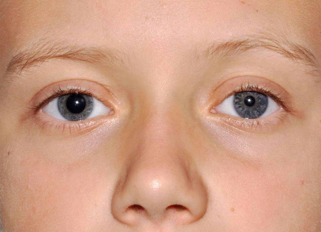 Асимметрия глаз: причины, лечение, диагностика