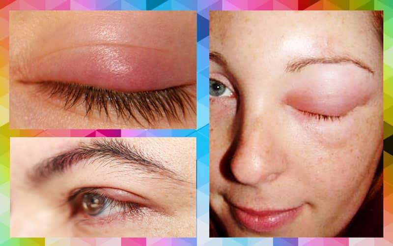 Как быстро снять отек с глаз - самые эффективные средства!