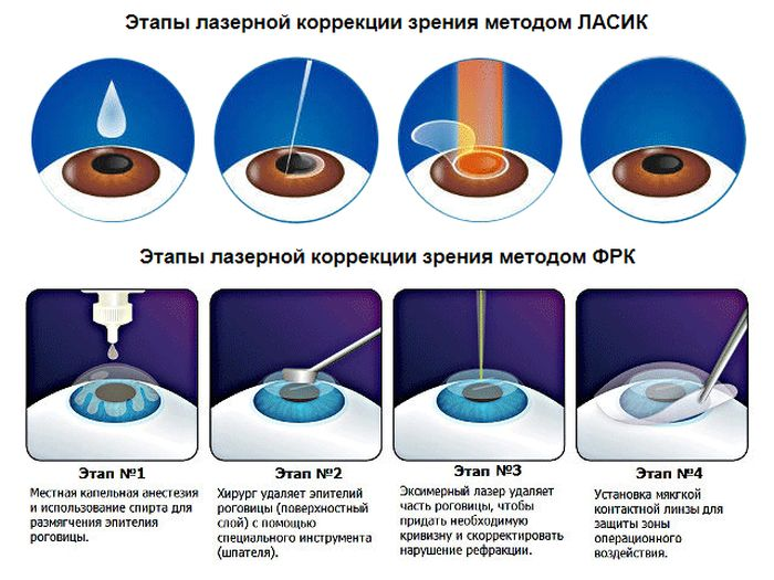 Фемто ласик (femto lasik) лазерная коррекция зрения - описание операции, последствия