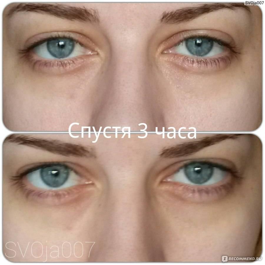 Гепариновая мазь от синяков, тёмных кругов, мешков и отёков под глазами: отзывы, инструкция по применению, противопоказания