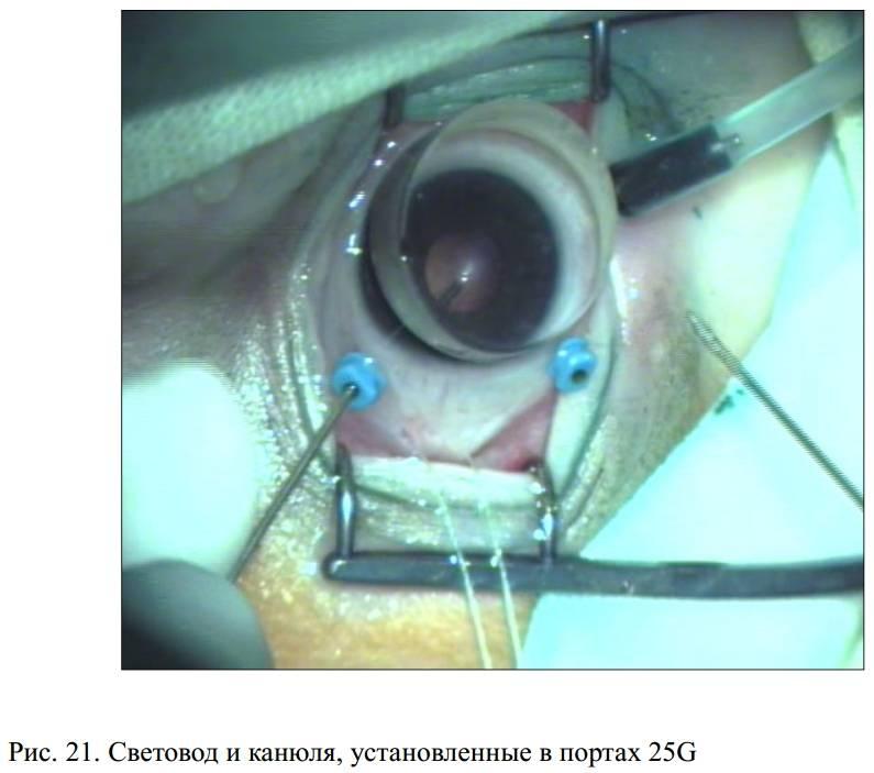 Высокотехнологичный метод сохранения зрения — витрэктомия, ее последствия и жизнь после