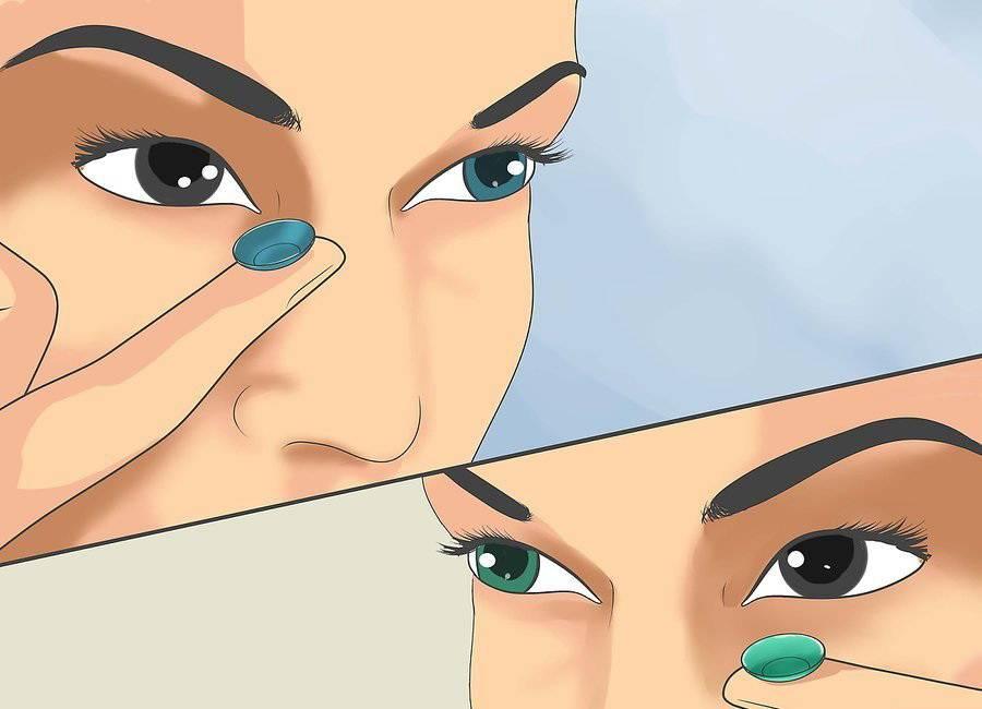 Ношение контактных линз - правила: можно ли носить детям, отложения на пленках, осложнения, ношение на одном глазу, при глаукоме и косоглазии, аллергия, болит голова