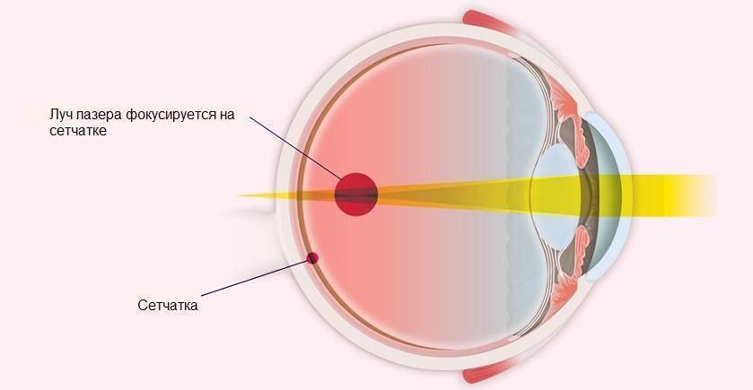 Лазерная коагуляция сетчатки глаза в москве: стоимость операции, показания и противопоказания