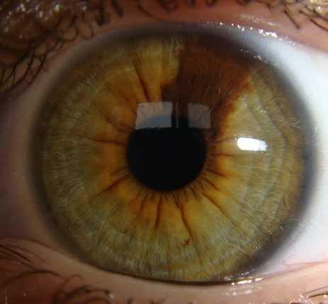 Родинка в глазу: что значит родимое пятно на радужке у человека? пигментный невус хориоидеи, на глазном яблоке и зрачке, а также удаление на конъюнктиве и веке