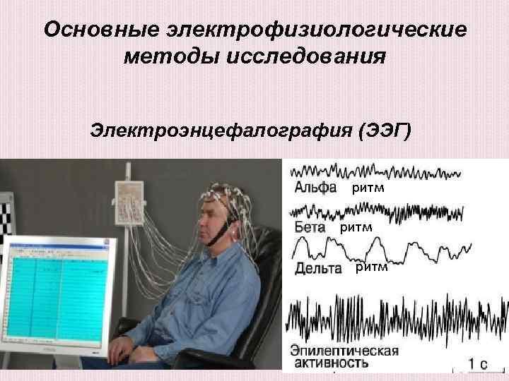 Электрофизиологическое исследование сердца - преимущества