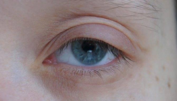 Сухость вокруг глаз у ребенка