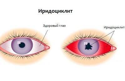 Иридоциклит симптомы, причины, лечение иридоциклита. все о глазных болезнях.