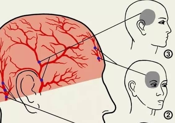 Топ 6 причин боли в виске и глазе с левой стороны