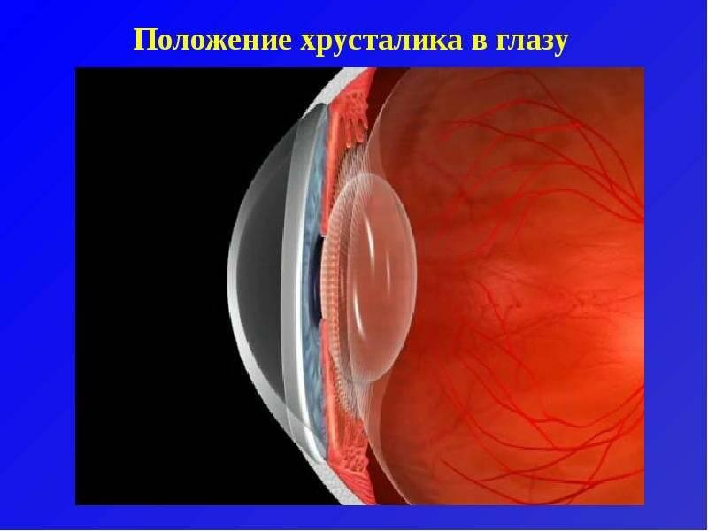Замена хрусталика при катаракте и близорукости
