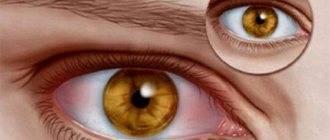 Почему возникает потемнение в глазах и головокружение