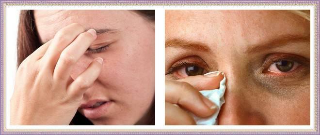 Синдром сухого глаза — симптомы, лечение народными средствами, профилактические меры