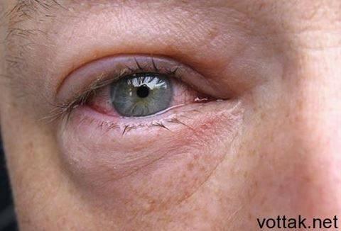 Отек глазного яблока и дна: причины и лечение, отек слизистой глаза