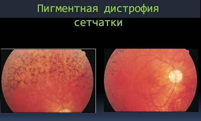 Пигментная дистрофия сетчатки глаза: что это, лечение заболевания