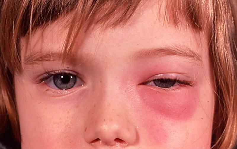 У ребенка болят глаза от света, высокой тепературы, при головной боли: в чем причина и как помочь малышу?
