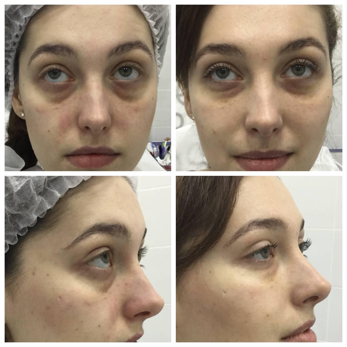Носослёзная борозда коррекция: способы коррекции их плюсы и минусы, фото до и после