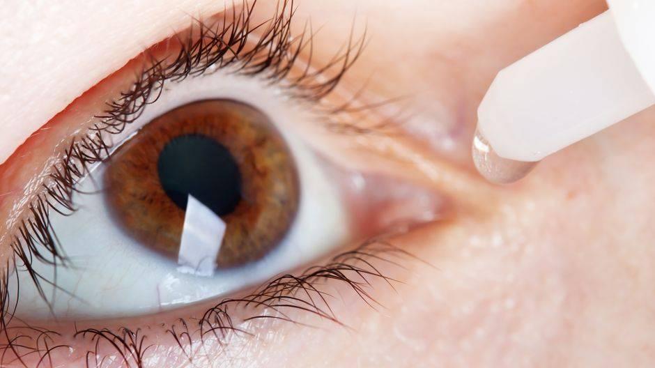 Синдром сухого глаза: причины, симптомы, особенности лечения