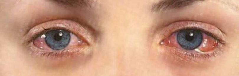 Офтальмогерпес и герпетический кератит: причины возникновения глазного герпеса, симптомы, диагностика и лечение + фото