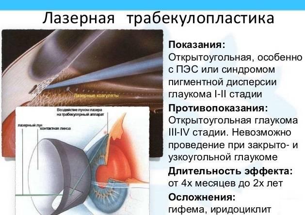 Лазерное лечение глаукомы: трабекулопластика, иридэктомия