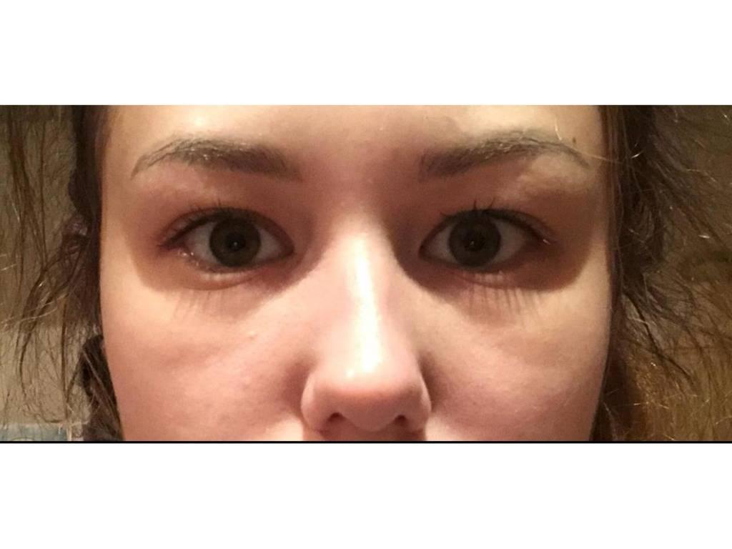 Как снять отек с глаз после слез быстро