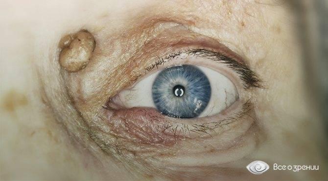Желтое пятно глаза – причины пятен на белках и на веках