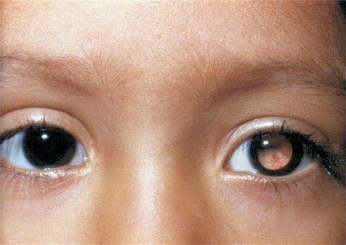 Ретинобластома у детей: симптомы, лечение глаза и причины