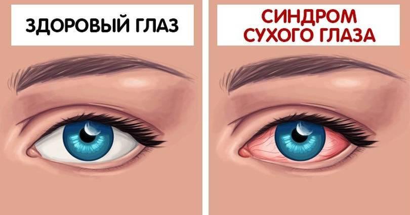 Почему у вас дергается глаз (веко)? все возможные причины и что это означает