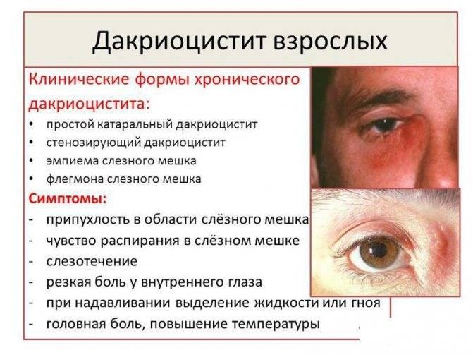 Дакриоцистит: причины, симптомы, лечение
