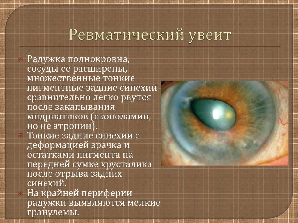 Заболевание глаз увеит: причины, симптомы и лечение - sammedic.ru