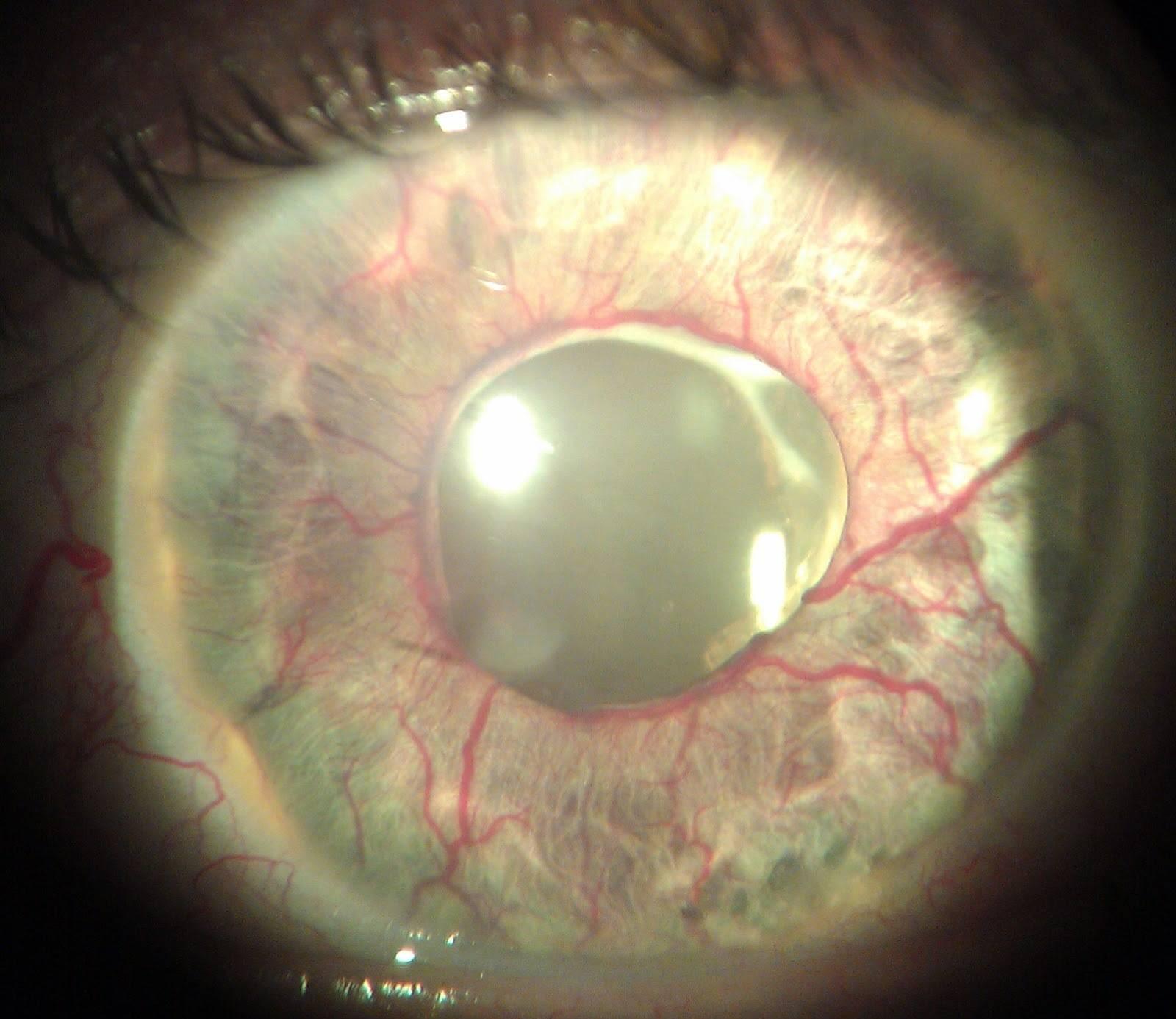 Вторичная глаукома — причины, особенности и способы лечения