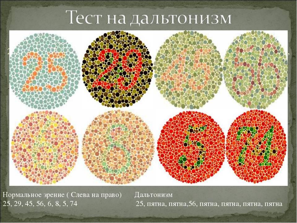 Аномалии цветового зрения                (нормальная, аномальная трихромазия; дихромазия; монохромазия; дальтонизм; протаномалия; дейтераномалия; тританомалия)