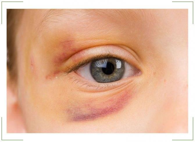 Синяк под глазом от удара через сколько дней проходит после ушиба над глазницей, как долго по времени у ребенка не сходит отек