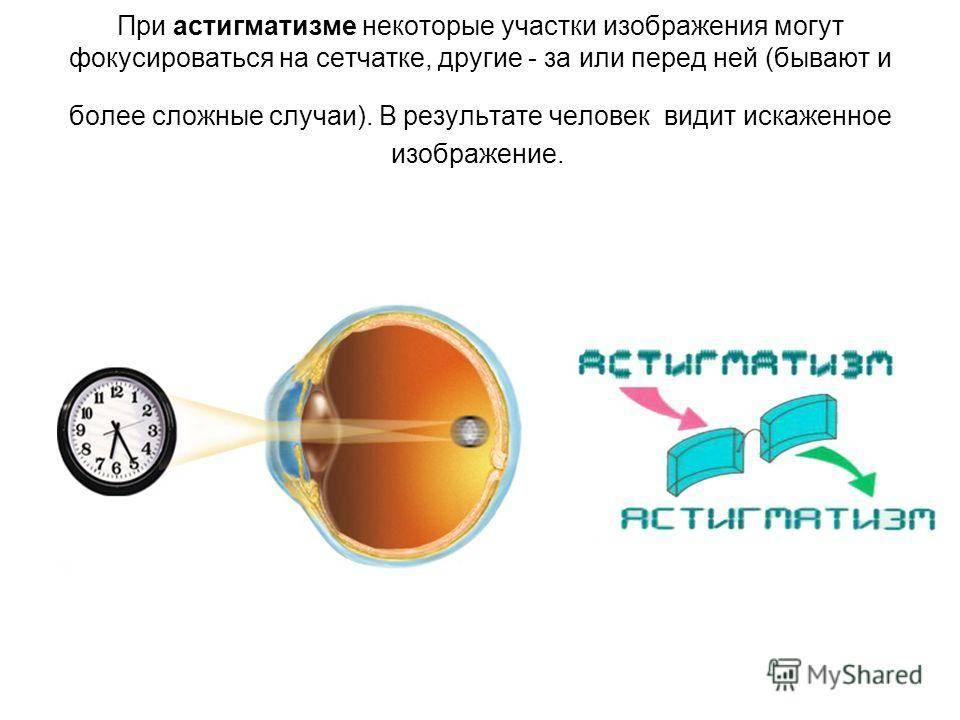 Капли при астигматизме для лечения глаз и профилактики: показания, применение, препараты (витаминные, тайфон, эмоксипин, ирифрин)