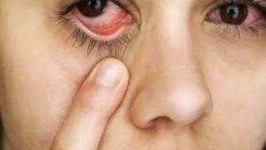 Простуда глаза