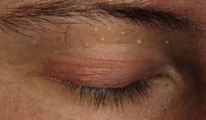 """Опухоли век: виды, причины, лечение, профилактика - """"здоровое око"""""""