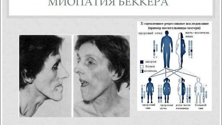 Миопатия дюшенна: как продлить жизнь человека с генетическим заболеванием